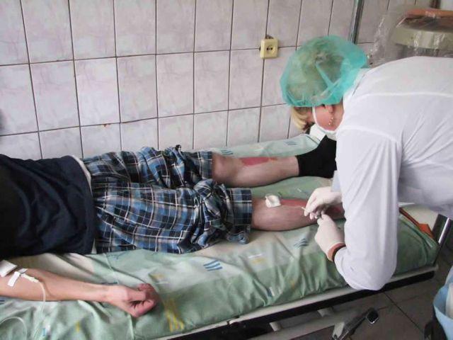 Лечение Псориаза В Стадии Обострения